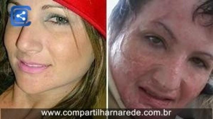 """Mulher que sofreu queimaduras com óleo faz vaquinha por """"rosto novo"""""""