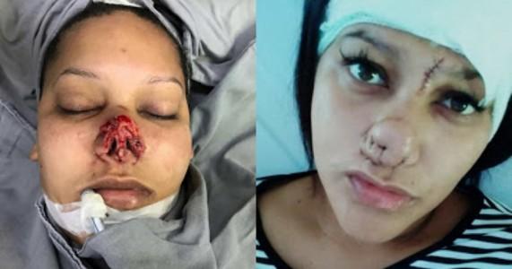 Mulher que teve nariz arrancado pelo ex terá de fazer 15 cirurgias