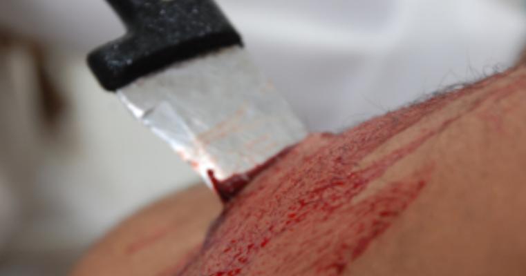 Dois homens ficam feridos durante briga no Bairro do Divino em Salgueiro-PE