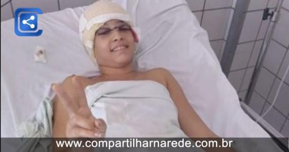 Jovem acidentada em kart terá pele da cintura transplantada na cabeça