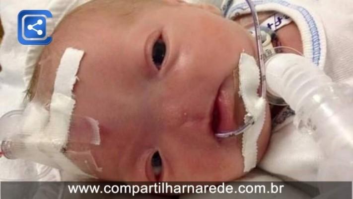 Bebê que nasceu sem nariz vai para casa após três semanas de internação